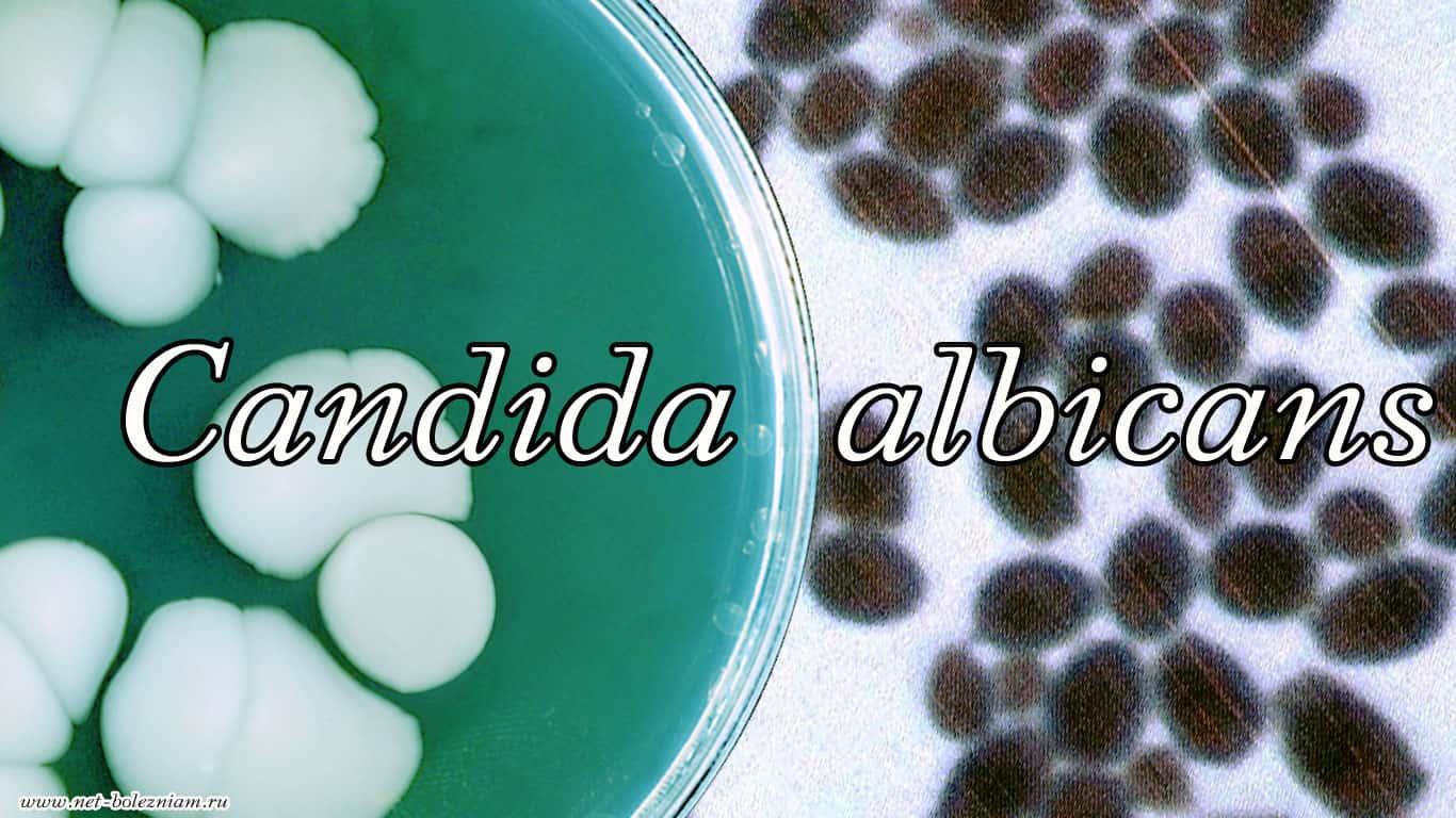 Candida albicans является грибковым микроорганизмом, по причине по которого могут появиться грибковые заболевания.