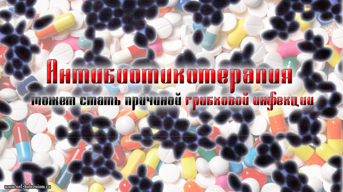 Проблемы с Candida albicans начинаются в результате длительного курса лечения антибиотиками.