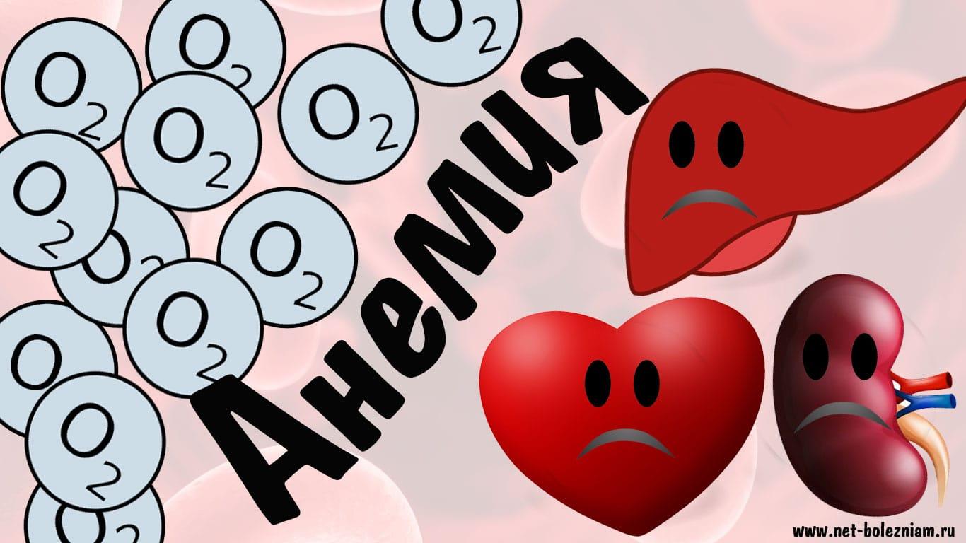 Что такое анемия?