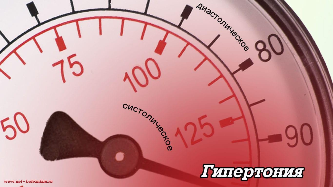 Гипертония - повышенное артериальное давление.