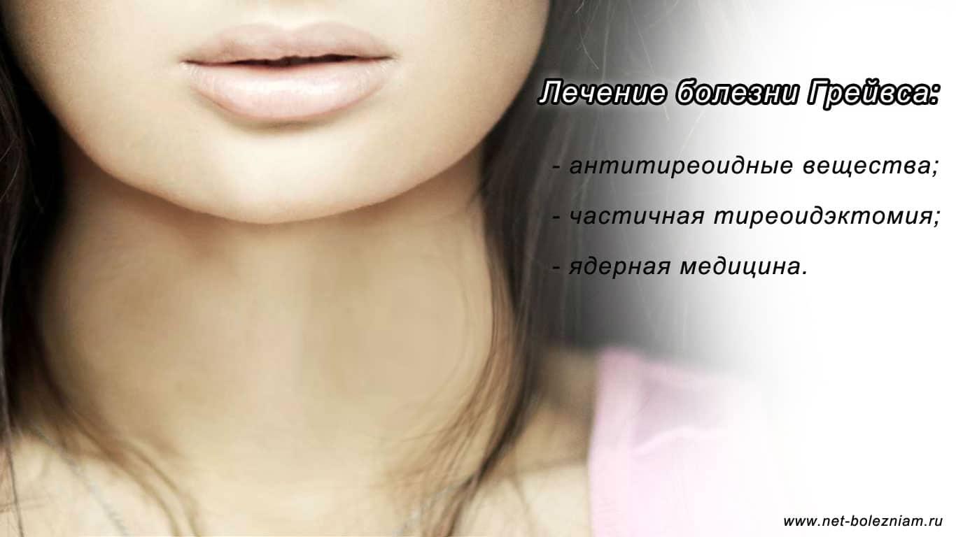 Для лечения болезни Грейвса (Базедова) могут использоваться антитиреоидные вещества, тиреоидэктомия или ядерная медицина.