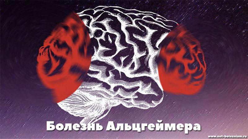 Болезнь Альзгеймера и мозг