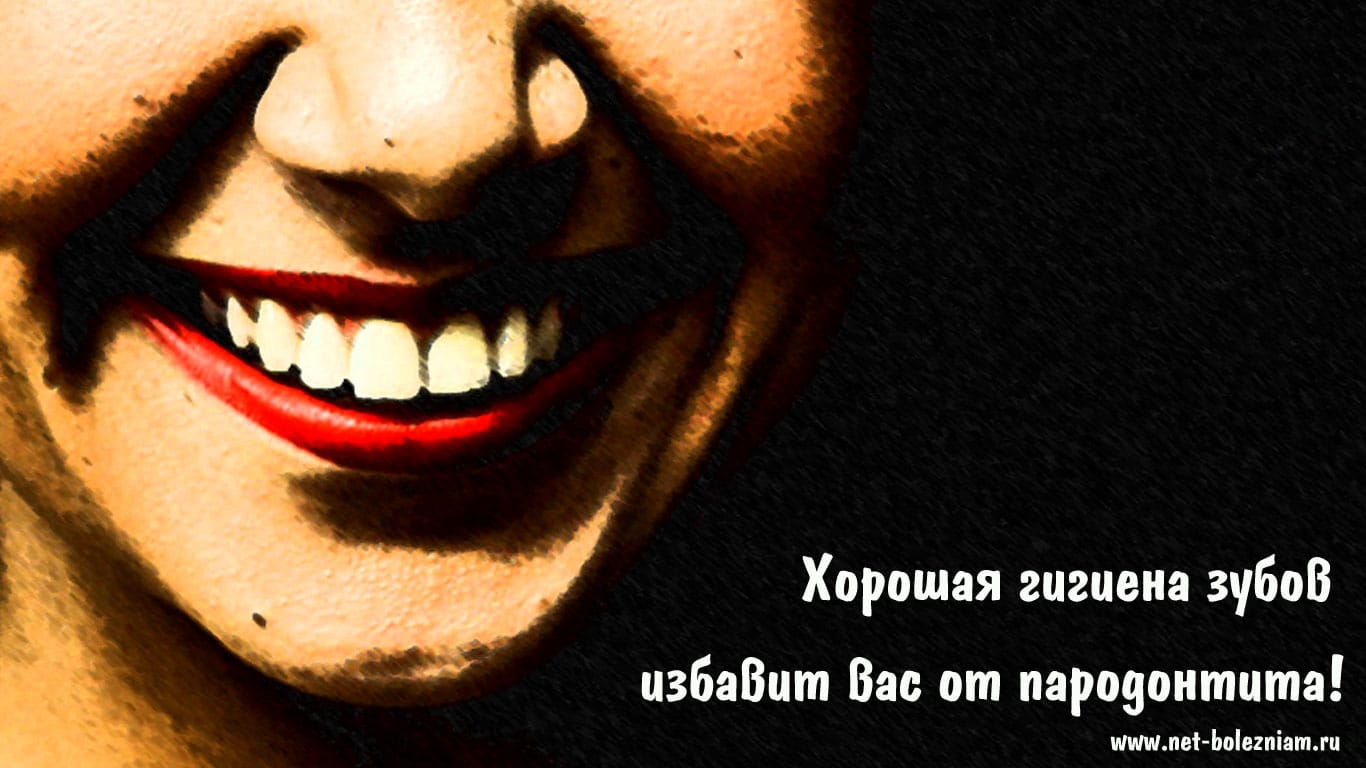 Хорошая гигиена зубов избавит вас от пародонтита!