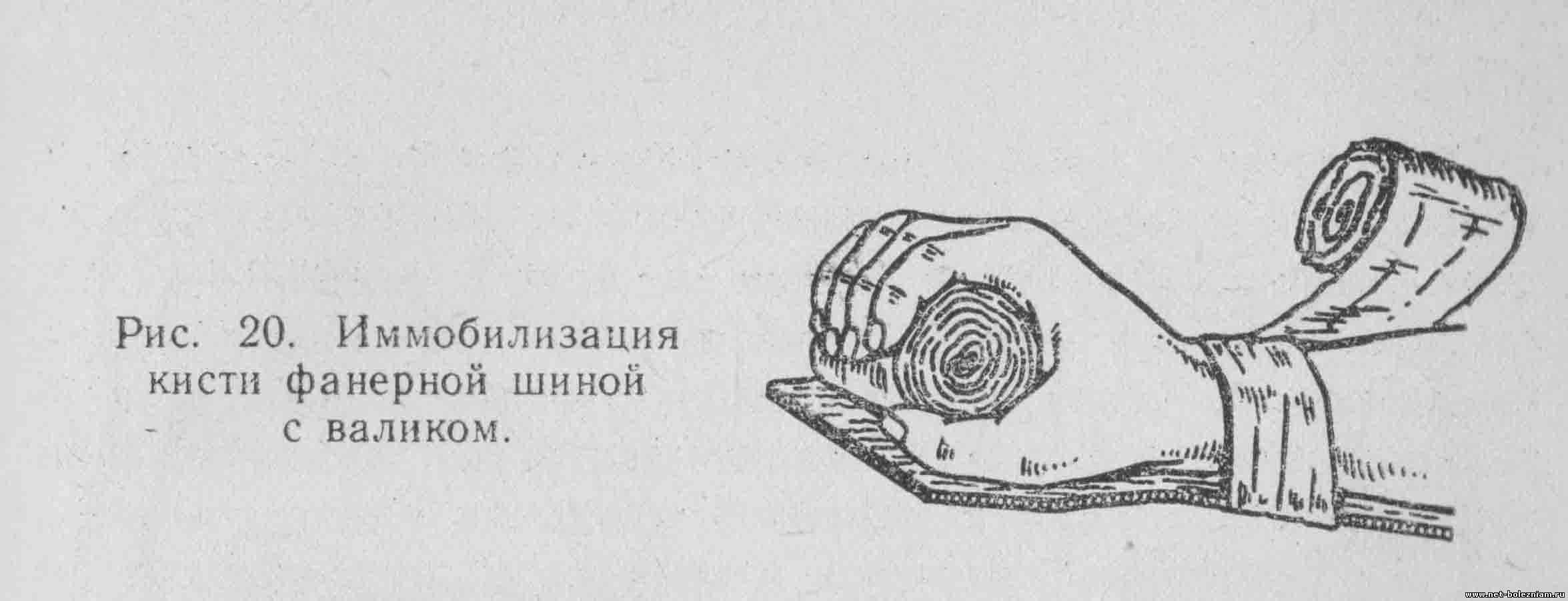 Иммобилизация кисти фанерной шиной с валиком