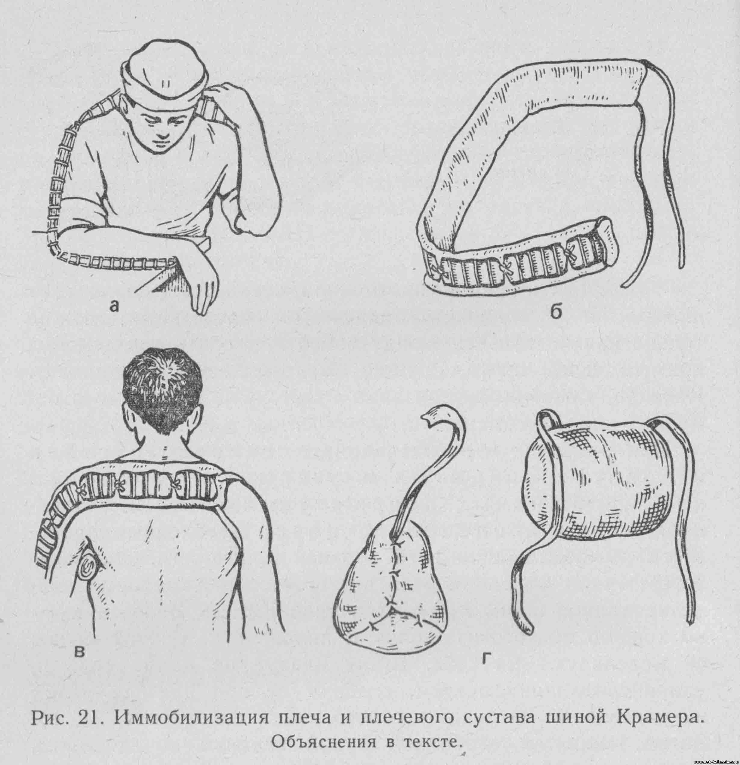 Иммобилизация плеча и плечевого сустава шиной Крамера