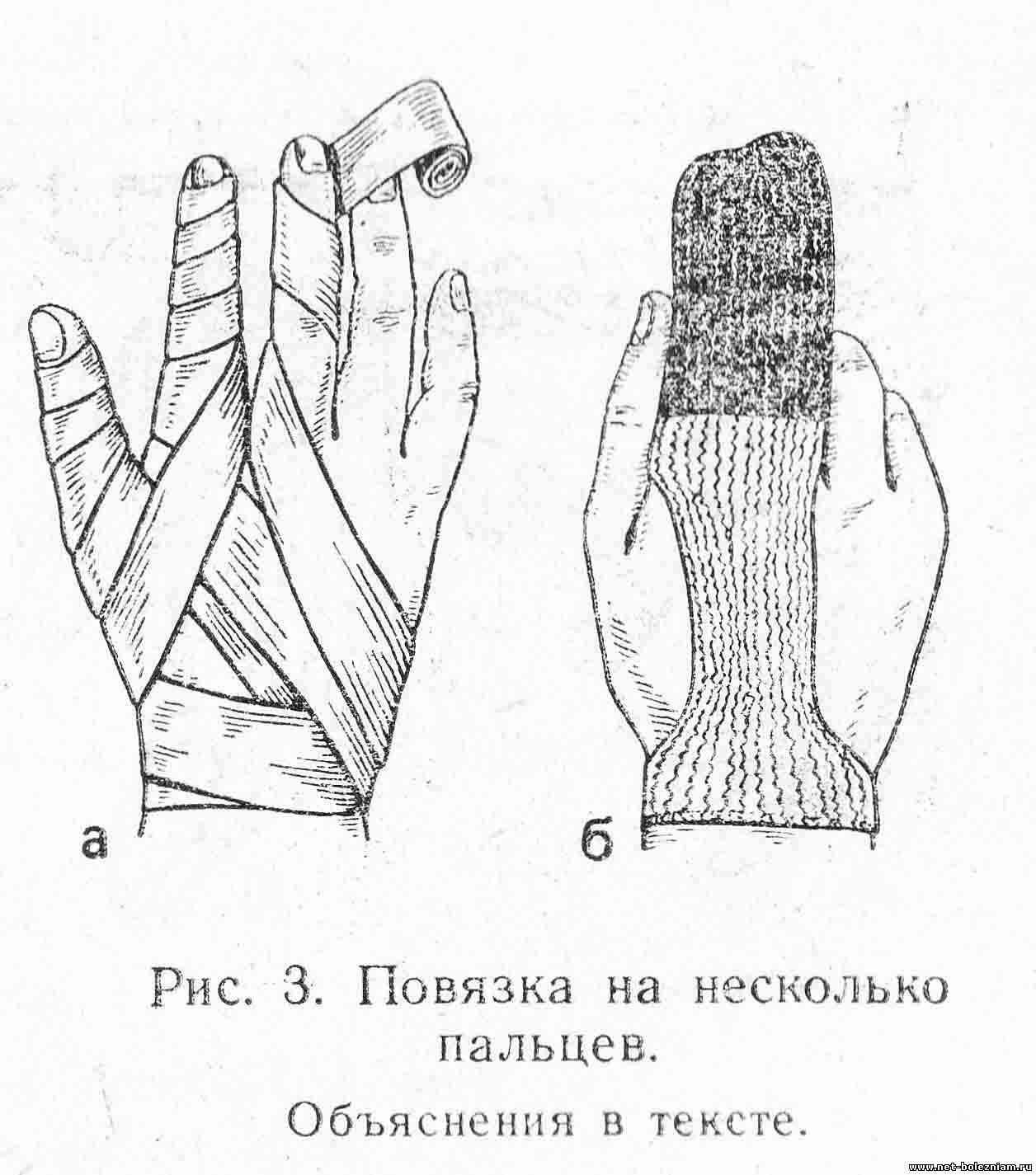 Повязка на несколько пальцев