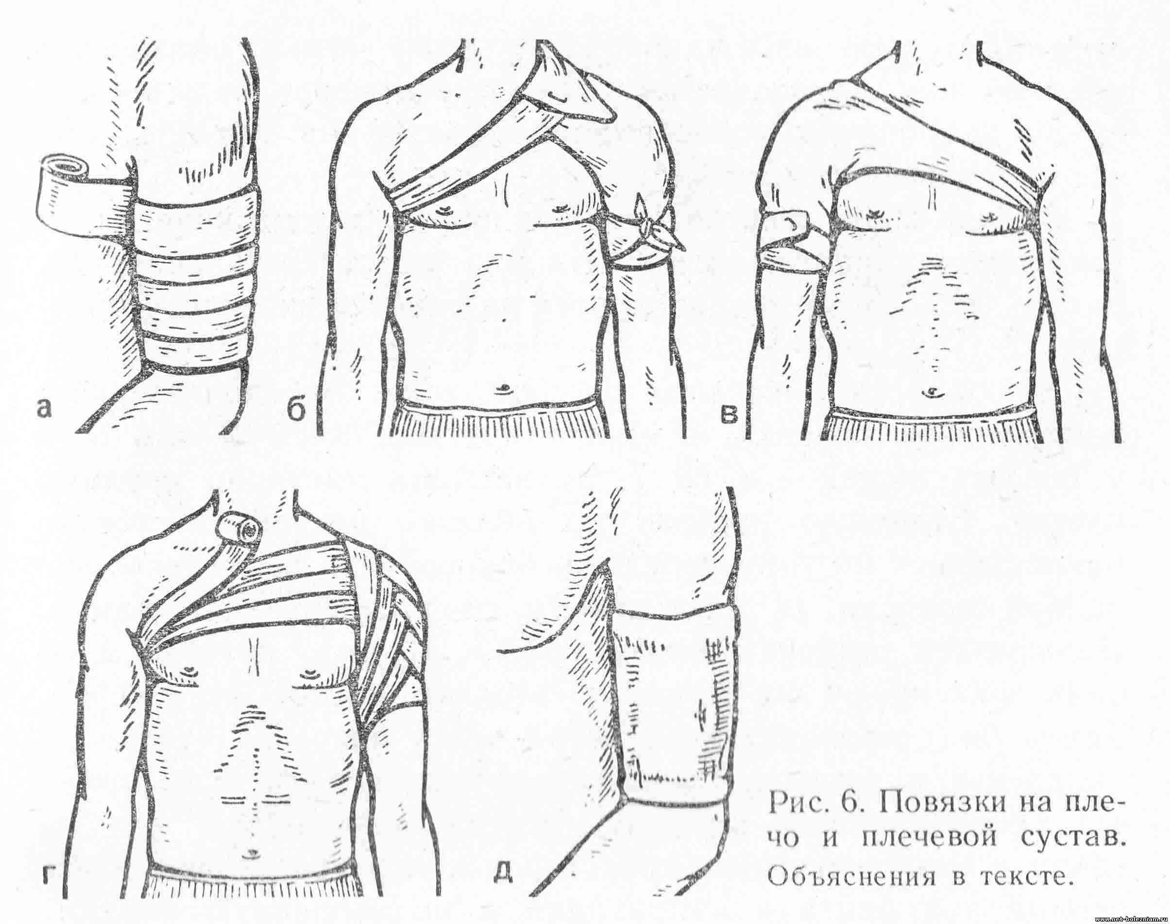 Повязки на плечо и плечевой сустав