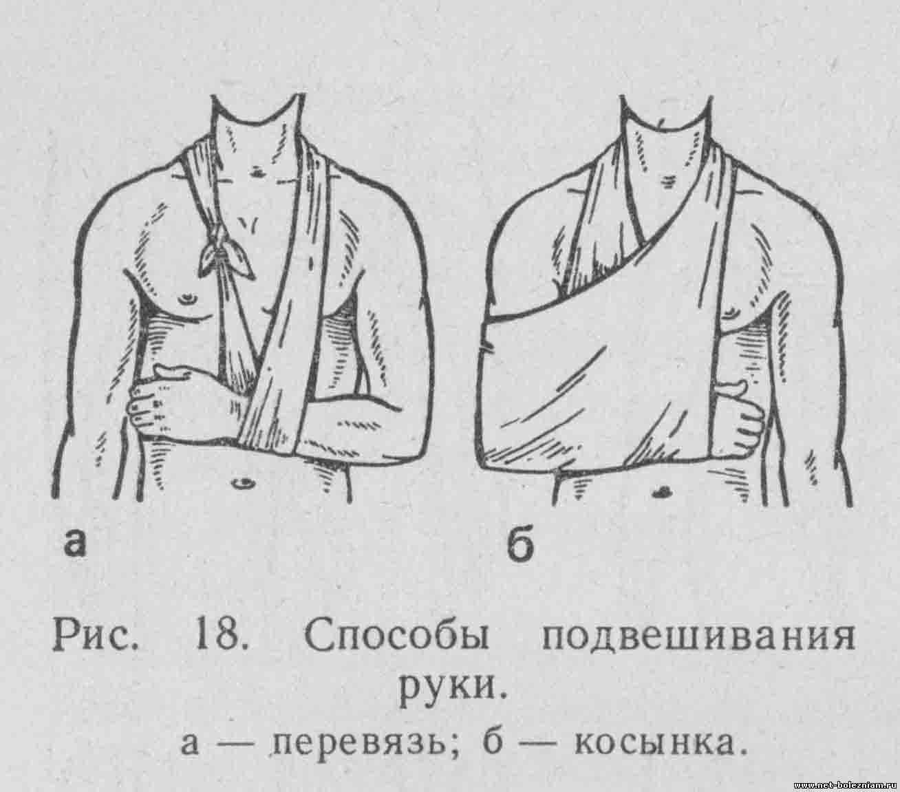 Способы подвешивания руки