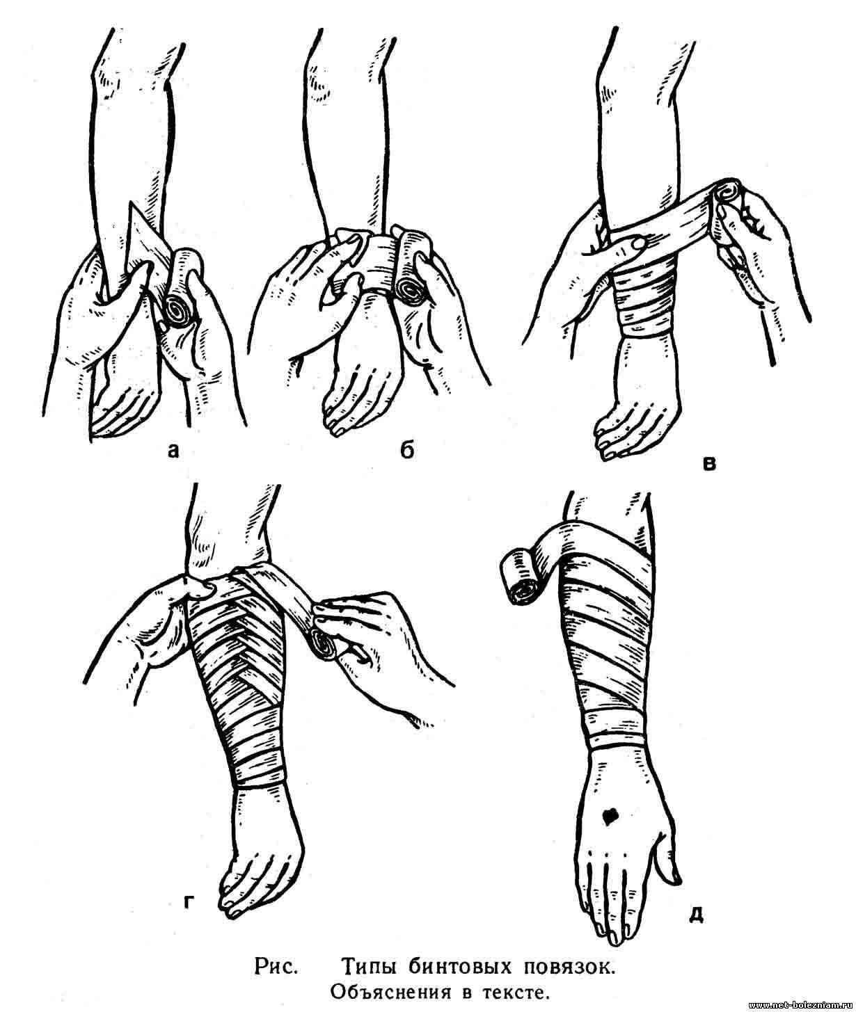 Типы бинтовых повязок