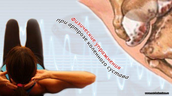 Артроз коленного сустава консервативное лечение